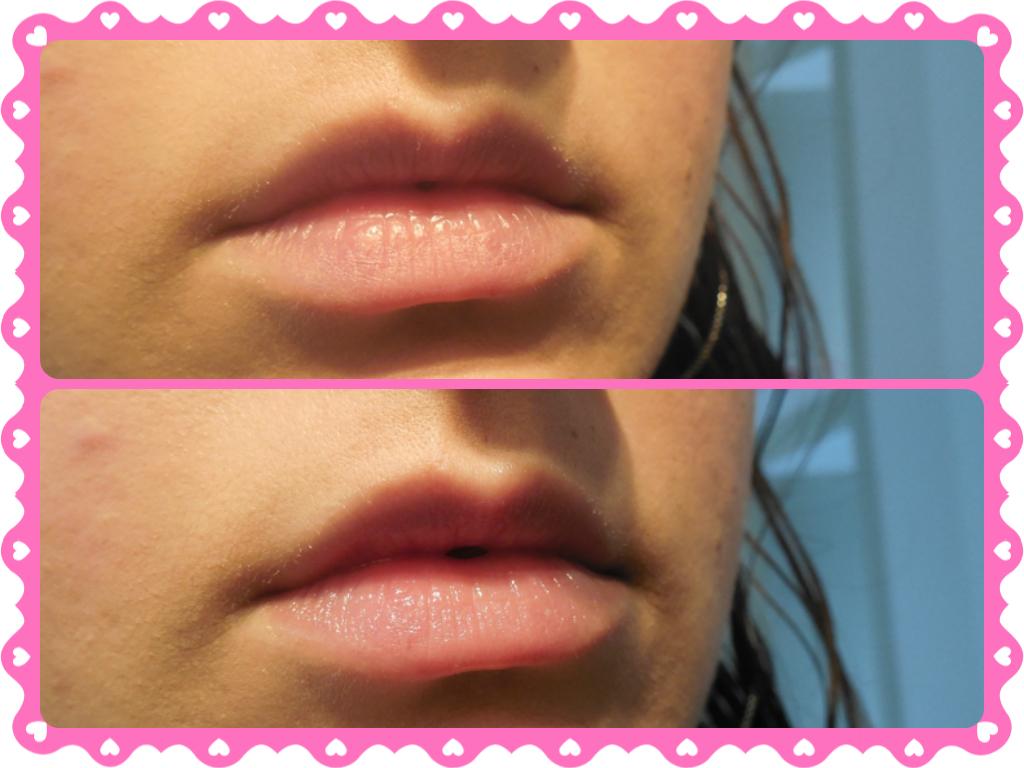 montagem baby lips hydra care